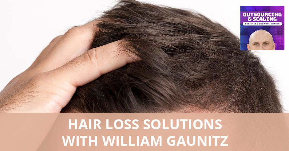 OAS William | Hair Loss Solutions